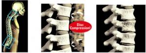 bad-spine