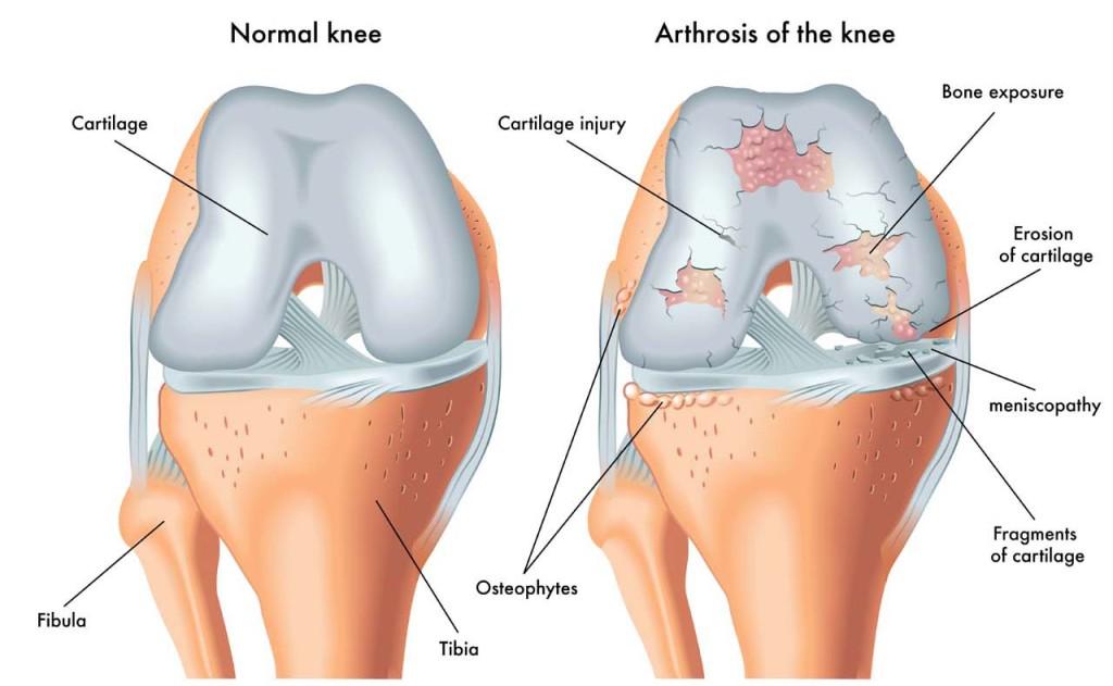 knee-oa